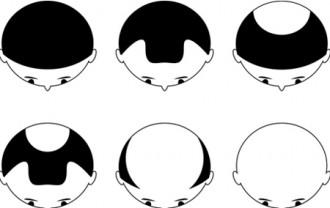 9.「AGA」男性型脱毛症